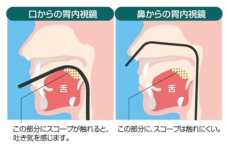 選べる経口と経鼻内視鏡
